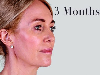 Ultherapy Facelift Review