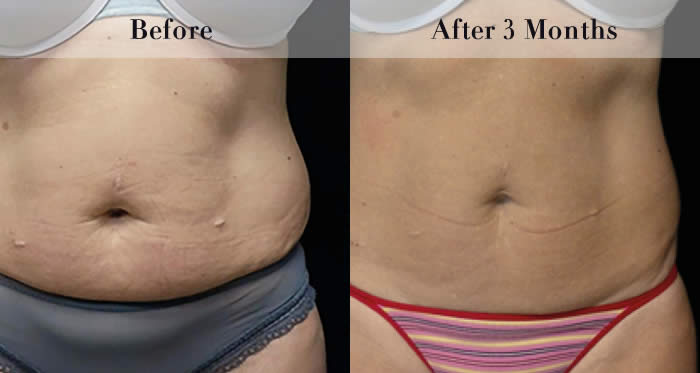 Body Sculpting Before & After