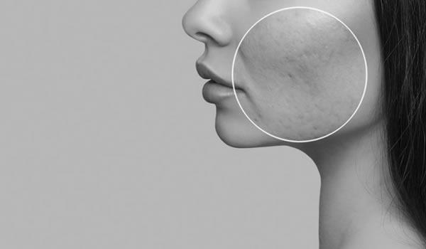 CO2 GAAS Laser Skin Resurfacing