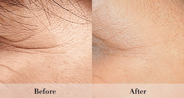 Wrinkle Injections before and after