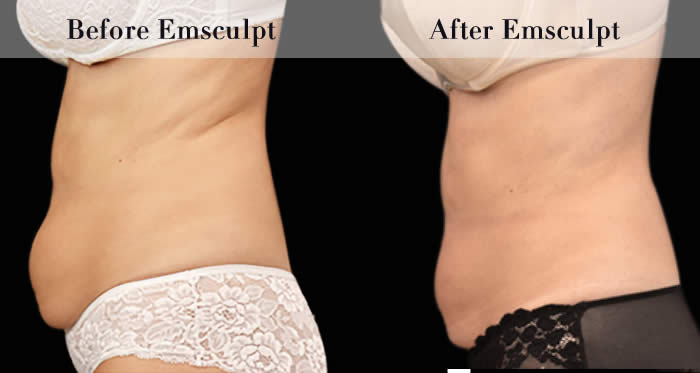 Love Handles & Belly Fat Reduction