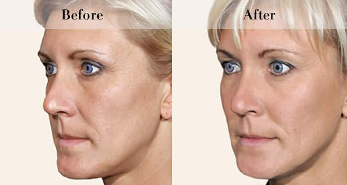 Full Face Dermal Fillers Before & After