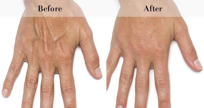 Dermal Fillers Before & After