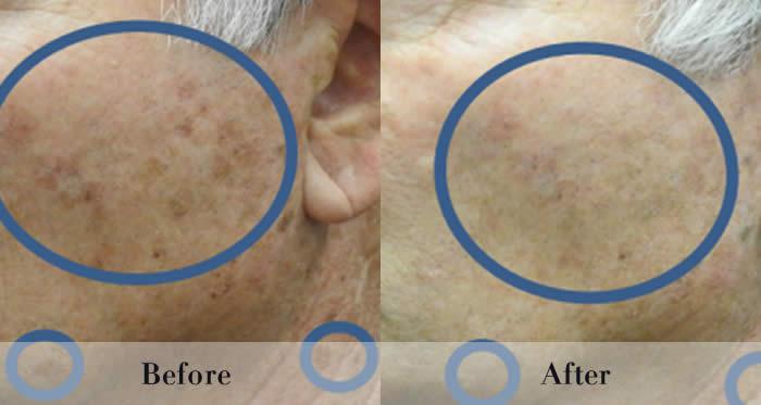 Photo Rejuvenation Before & After