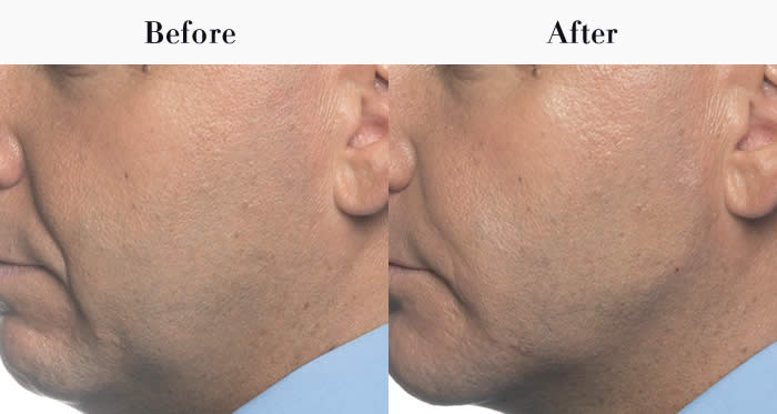 Jawline Definition Before & After