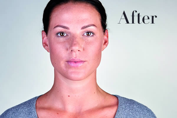 Ultherapy Review