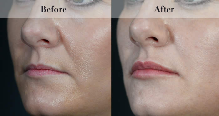 Lip Fillers Before & After