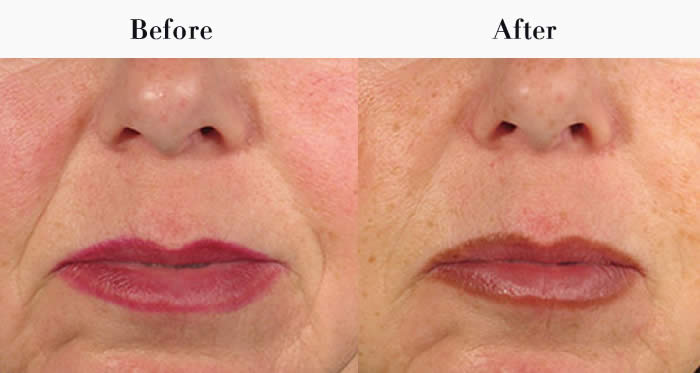 Nasolabial Folds Before & After