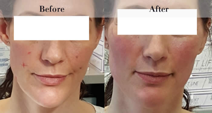 PDO Beauty Threads Before & After