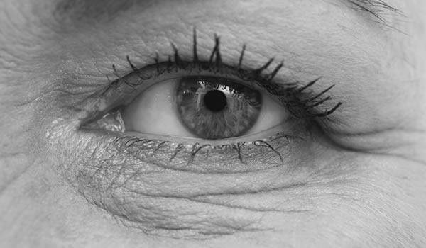 Plasma Eyelid & Eyebag Tightening