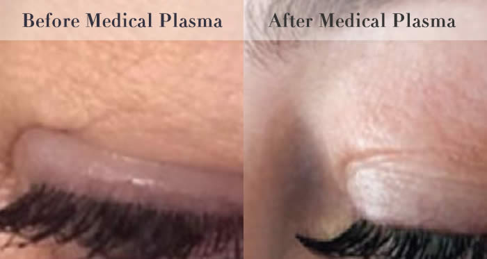 eyelid tightening before and after