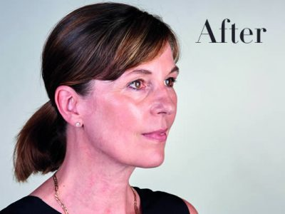 Ultherapy Review After