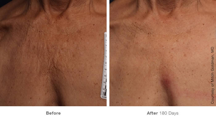 Ultherapy Skin Tightening Before & After