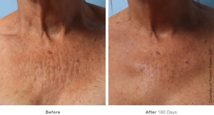 Ultherapy Décolletage Skin Tightening Before & After