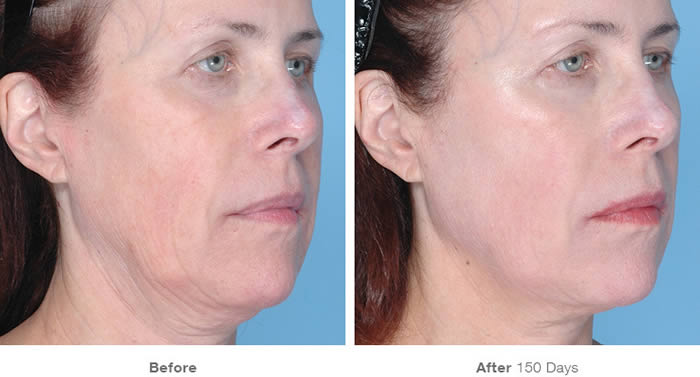 Ultherapy Facelift Before & After