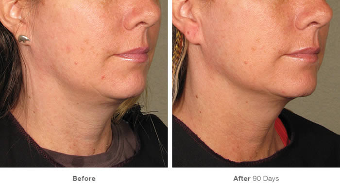 Ultherapy Lower Facelift Before & After