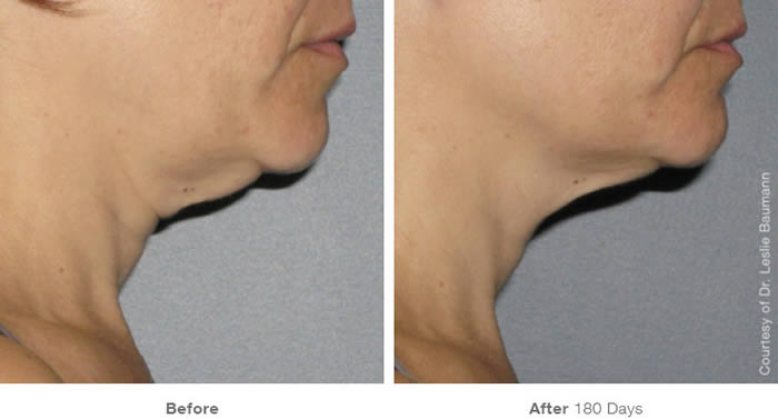 Ultherapy Neck Lift Before & After