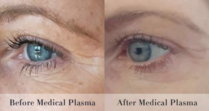 crows feet removal before and after